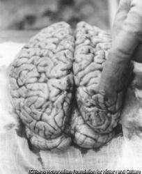 作品画像:脳腫瘍、広島市陸軍病院宇品分院